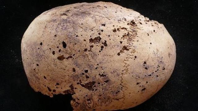 U. GRANADA El cráneo de la momia
