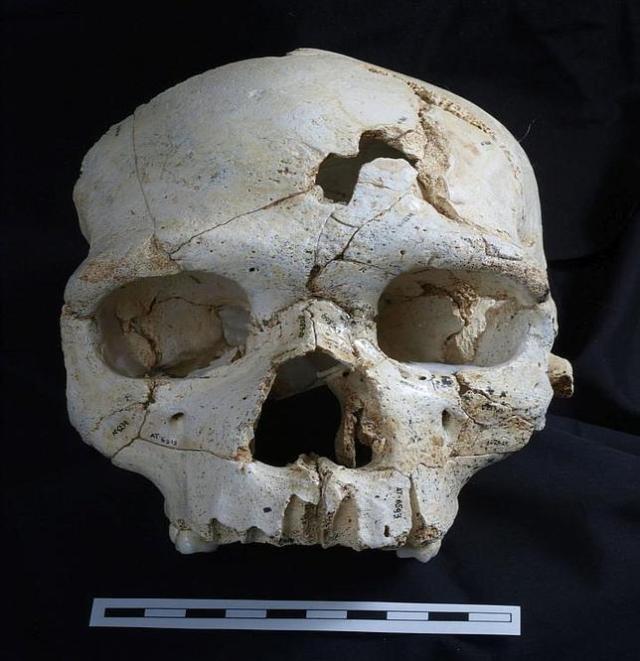 Javier Trueba/Madrid Scientific Films Vista frontal del Cráneo 17 de la Sima de los Huesos, con los dos impactos que causaron la muerte del individuo