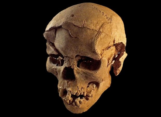 Cráneo de un hombre con múltiples lesiones causadas por un objeto contundente, como un palo - MARTA MIRAZON LAHR